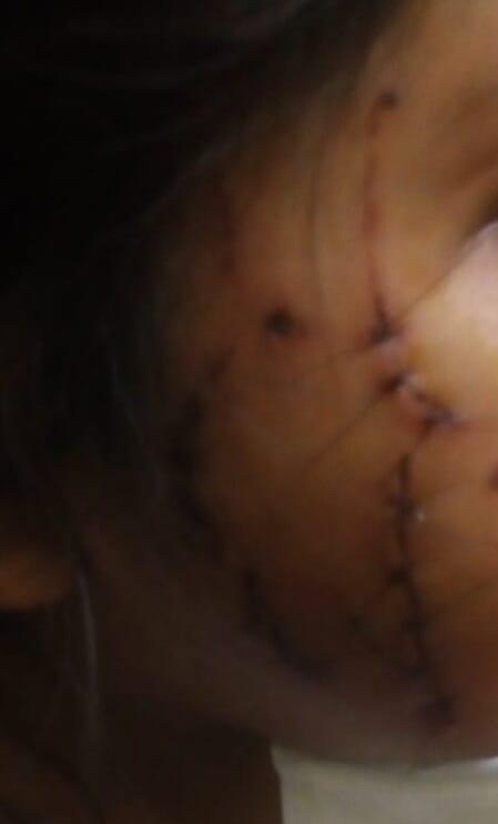 Las heridas que recibió la niña en su cara